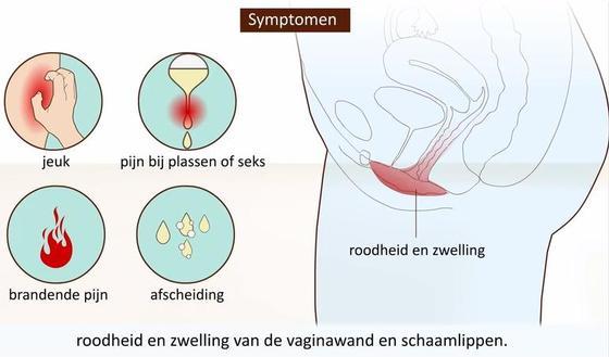 Vaginale schimmelinfectie symptomen